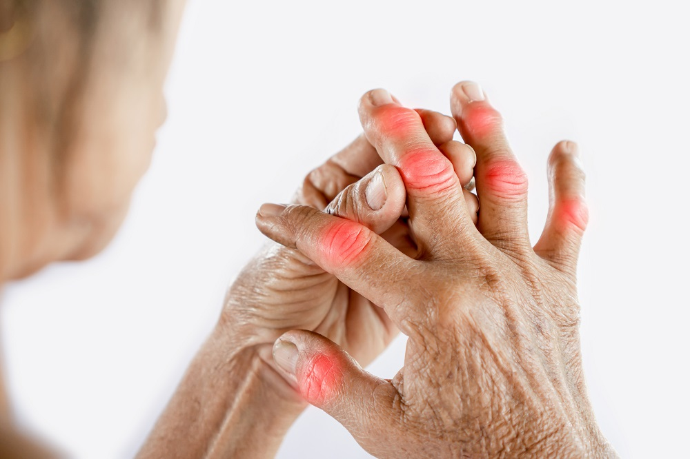 Arthritis-How-to-overcome-knee-hip-or-arm-pain-without-a-pill
